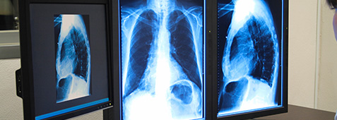 radiology diagnostic reads